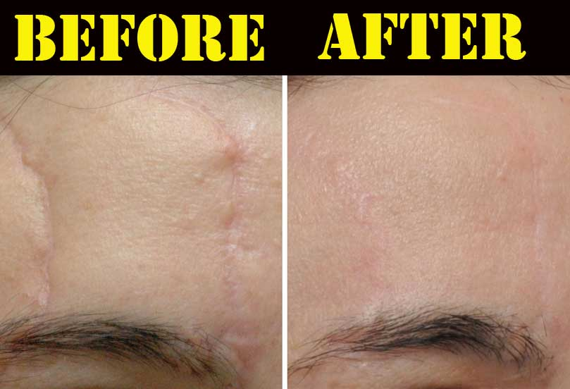 silicone sheets for scars before and after